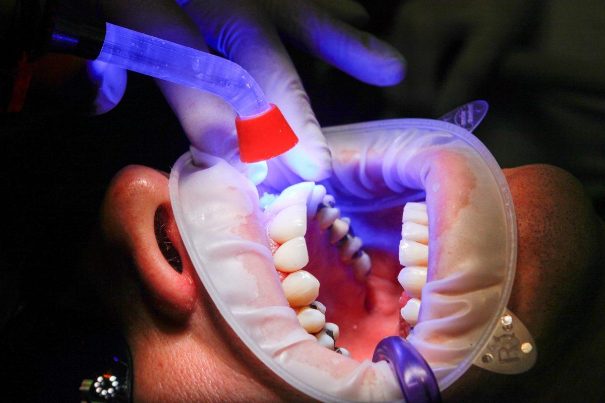 Złe postępowanie odżywiania się to większe niedobory w jamie ustnej a również ich brak